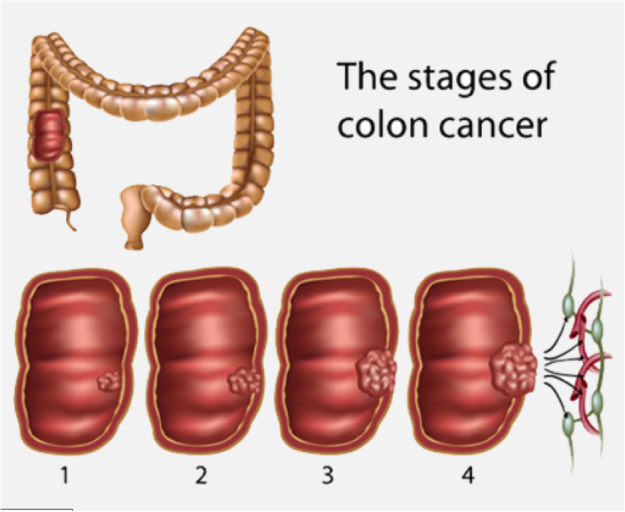 Bowel Cancer Screening Gastrointestinal And Liver Clinic